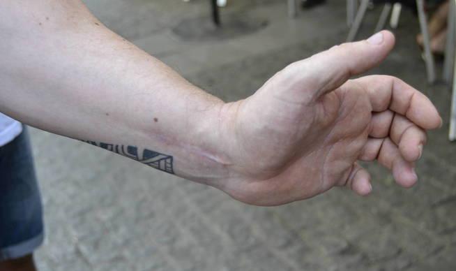 juan-muestra-la-cicatriz-de-otra-agresion-que-tuvo-hace-unos-anos-m-z